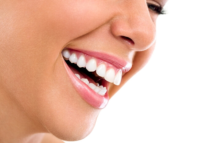 veneers teeth cost