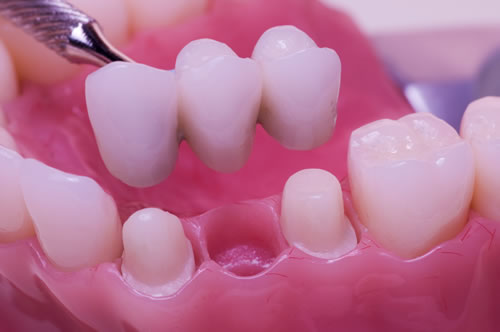 dental-bridge-header