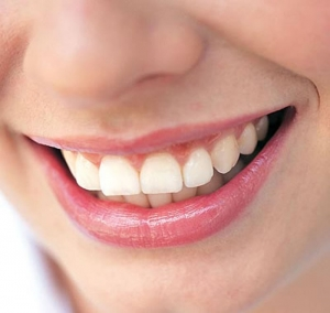 tooth bonding