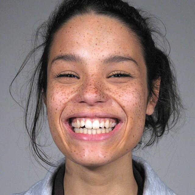 affordable dental implants (1)